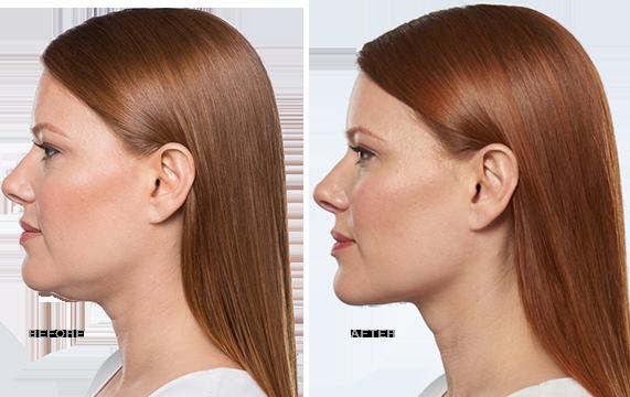 Kybella Treatment - Cosmetic Dermatology Buffalo, NY