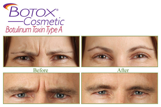 Botox Treatment - Cosmetic Dermatology Buffalo, NY