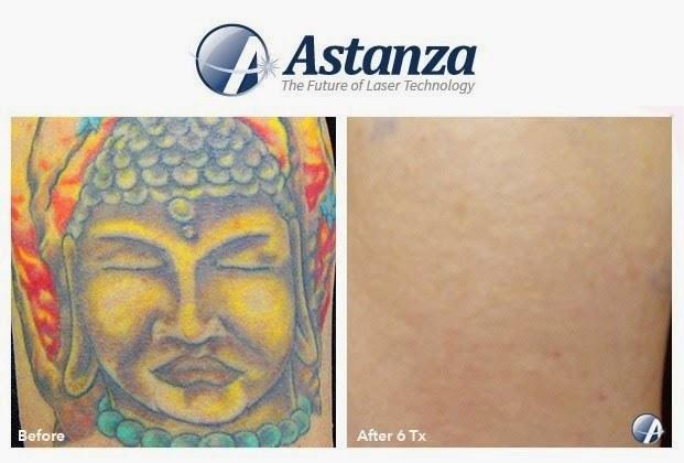 Astanza-Results